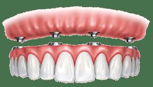Screw Retained Bridge or Denture