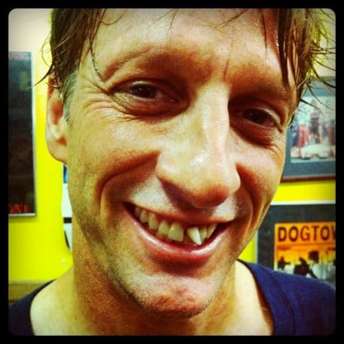 Picture of Tony Hawk with front tooth missing
